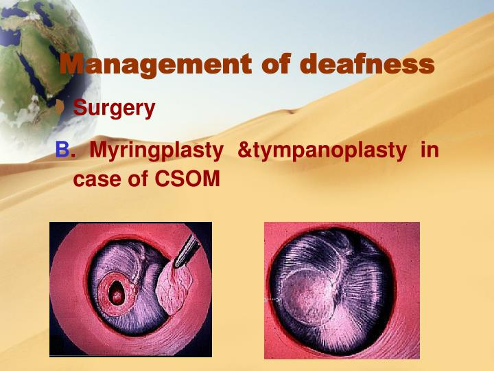 Management of deafness