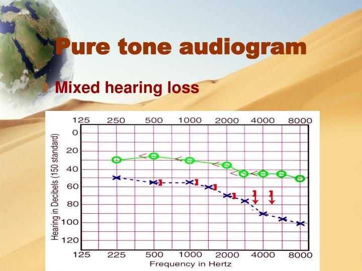 Pure tone audiogram