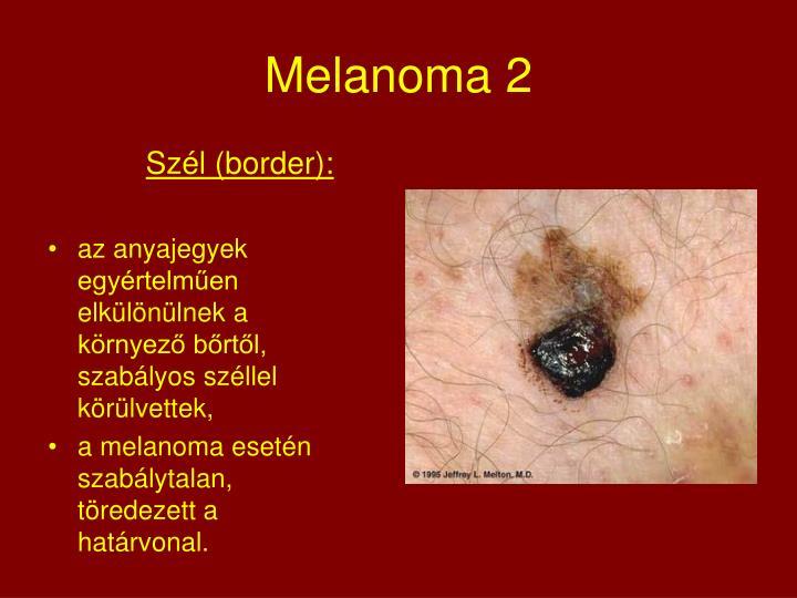Melanoma 2
