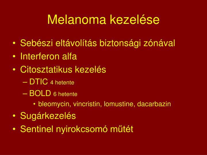 Melanoma kezelése