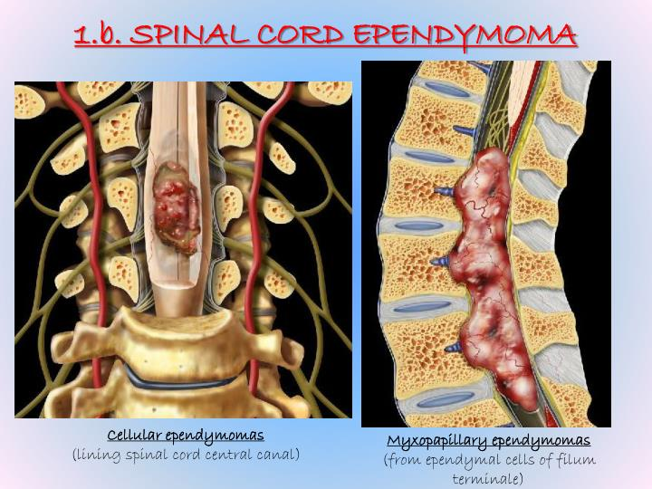 1.b. SPINAL CORD EPENDYMOMA