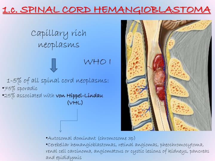 1.c. SPINAL CORD HEMANGIOBLASTOMA