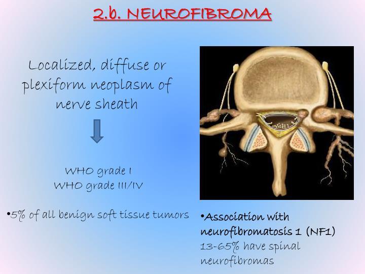 2.b. NEUROFIBROMA