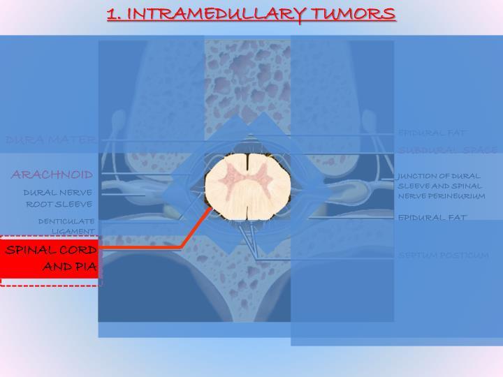 1. INTRAMEDULLARY TUMORS