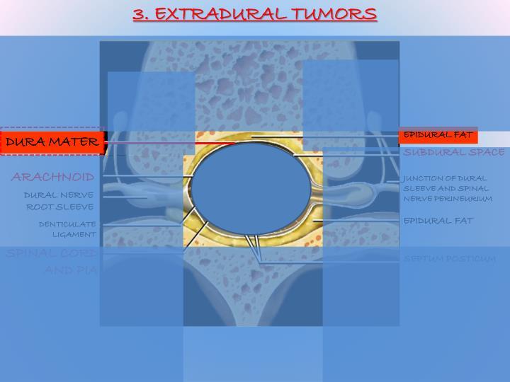 3. EXTRADURAL TUMORS