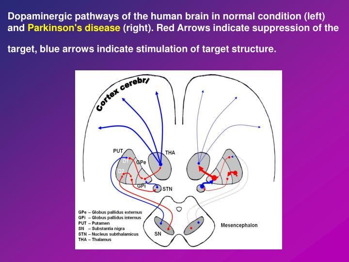 Dopaminergic pathways of the human brain in normal condition (left) and
