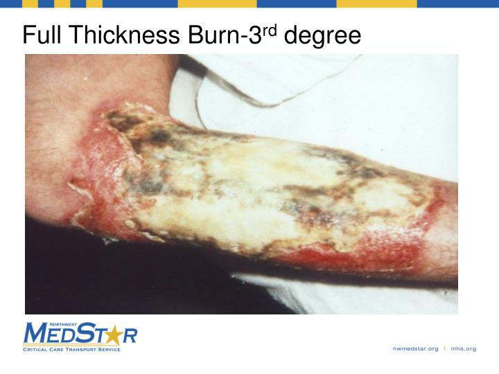 Full Thickness Burn-3