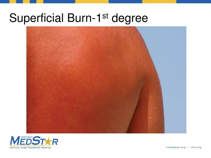Superficial Burn-1