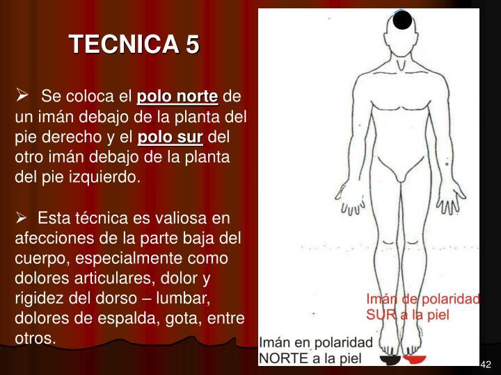 TECNICA 5