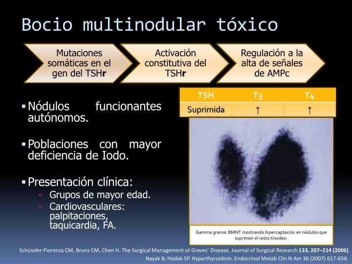 Bocio multinodular tóxico