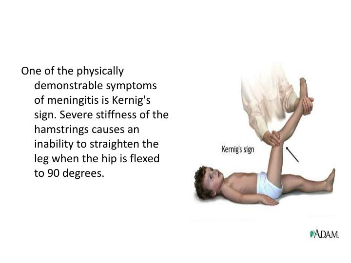 One of the physically demonstrable symptoms of meningitis is Kernig's sign. Severe stiffness of the hamstrings causes an inability to straighten the leg when the hip is flexed to 90 degrees.