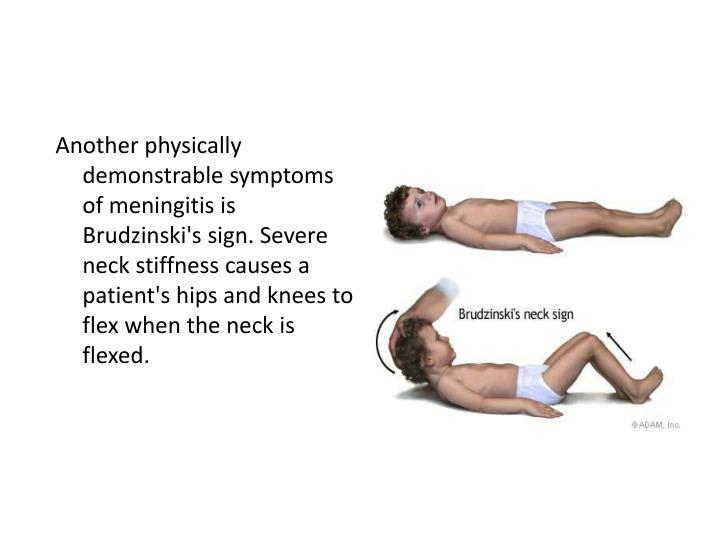 Another physically demonstrable symptoms of meningitis is Brudzinski's sign. Severe neck stiffness causes a patient's hips and knees to flex when the neck is flexed.