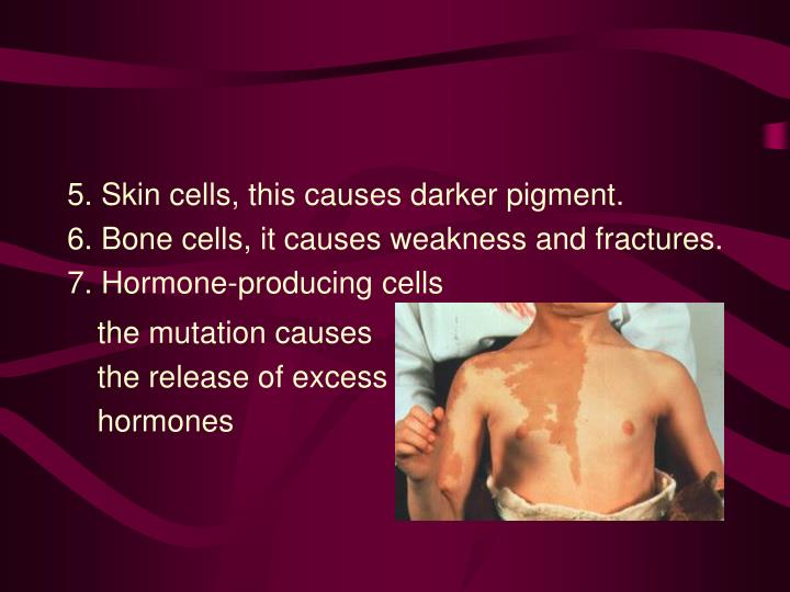 5. Skin cells, this causes darker pigment.