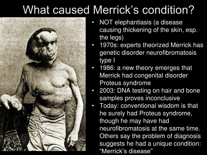 What caused Merrick's condition?