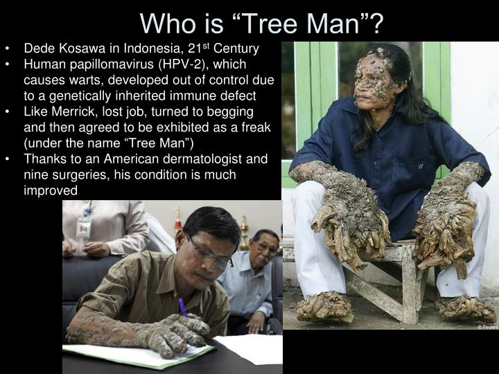 "Who is ""Tree Man""?"