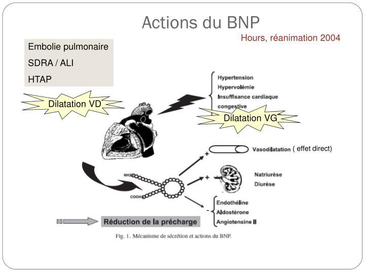 Actions du BNP