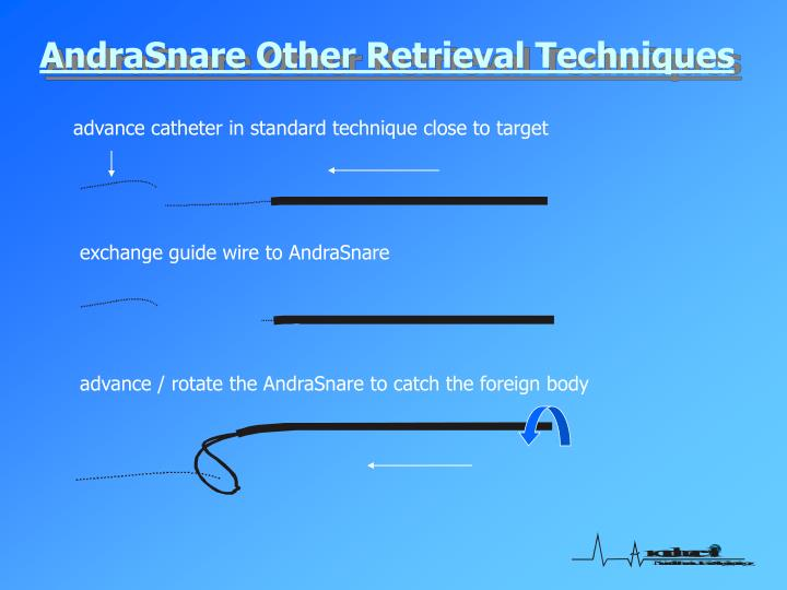 AndraSnare Other Retrieval Techniques