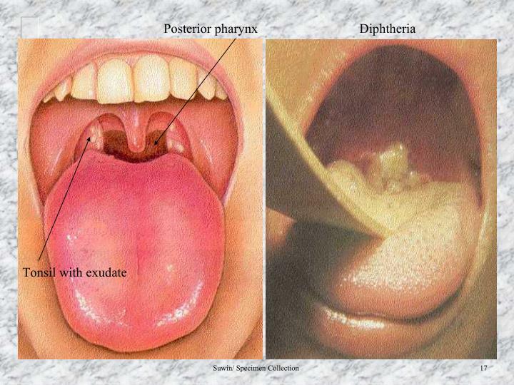 Posterior pharynx