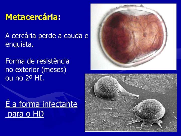Metacercária