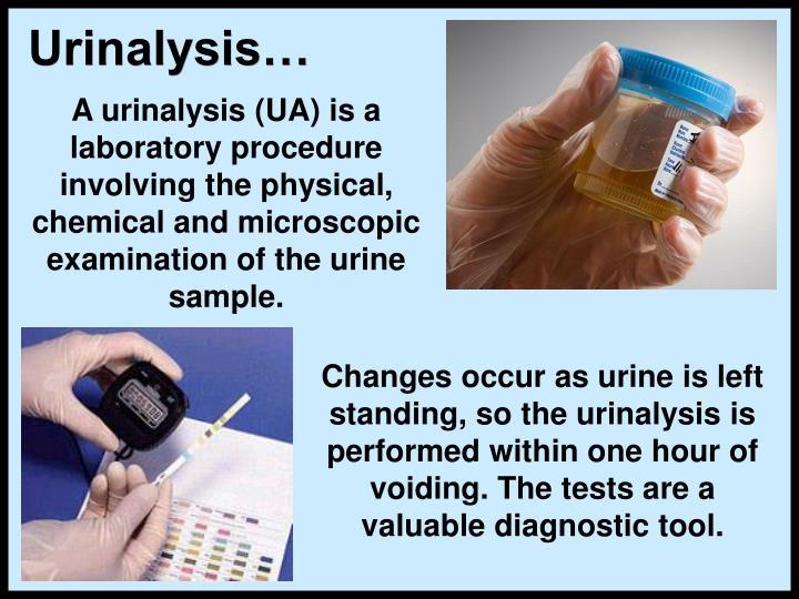 Urinalysis…