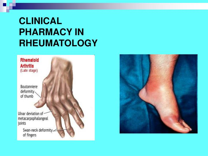 CLINICAL PHARMACY IN RHEUMATOLOGY