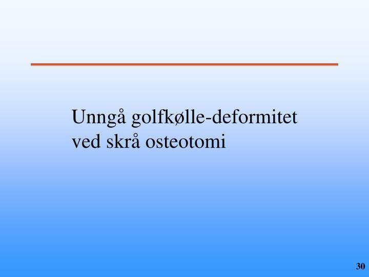 Unngå golfkølle-deformitet