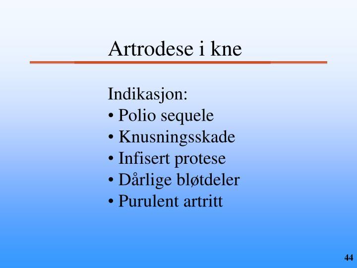 Artrodese i kne