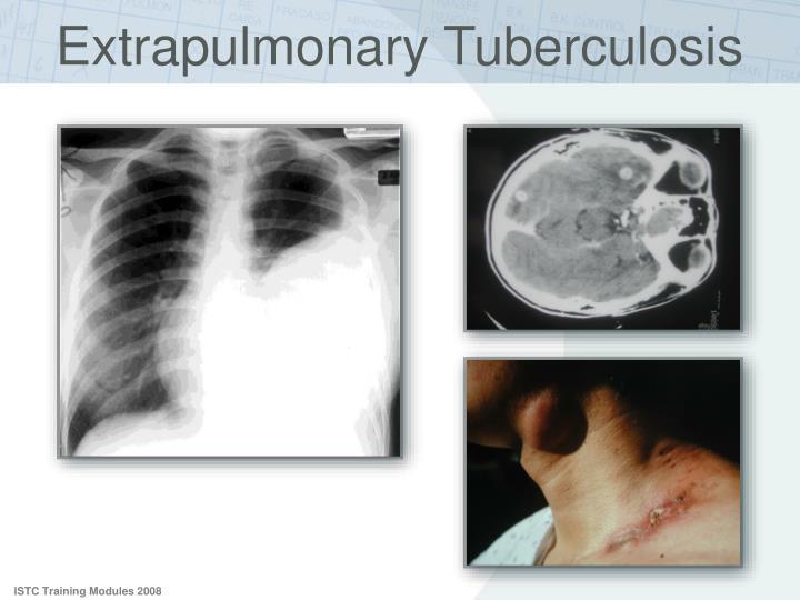 thesis on extrapulmonary tuberculosis