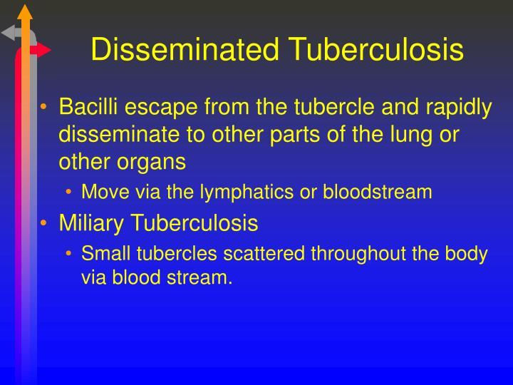 Disseminated Tuberculosis