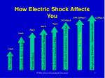 how electric shock affects you
