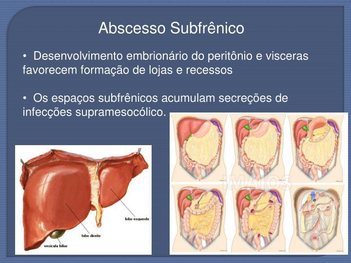 Abscesso Subfrênico