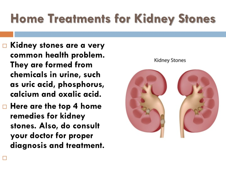 PPT - Home Treatments for Kidney Stones PowerPoint Presentation - ID