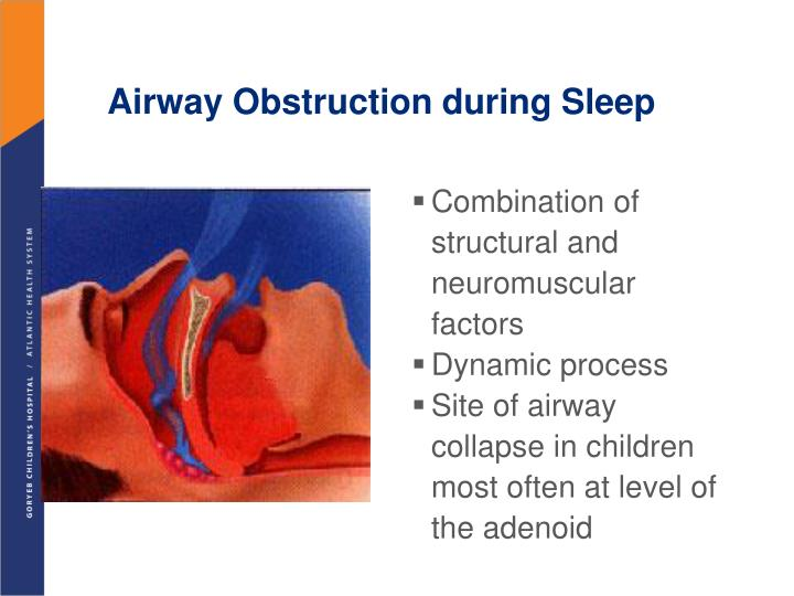 Airway Obstruction during Sleep