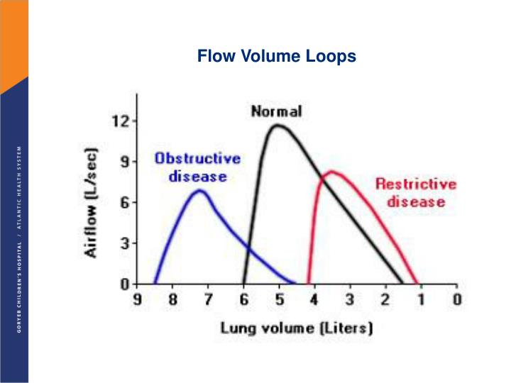 Flow Volume Loops