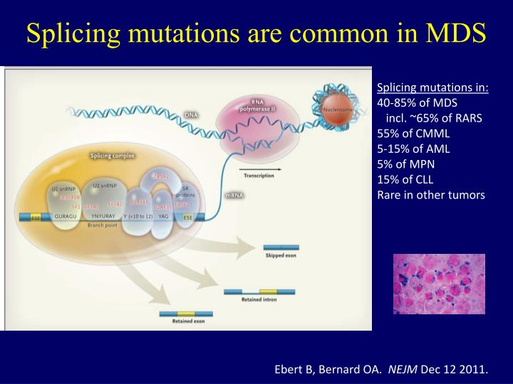 Splicing mutations are common in MDS