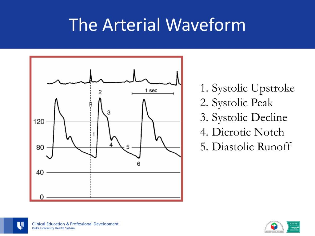 PPT - Arterial Line Management for the Birthing Center..