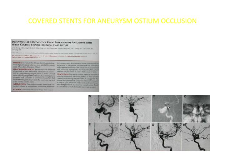COVERED STENTS FOR ANEURYSM OSTIUM OCCLUSION