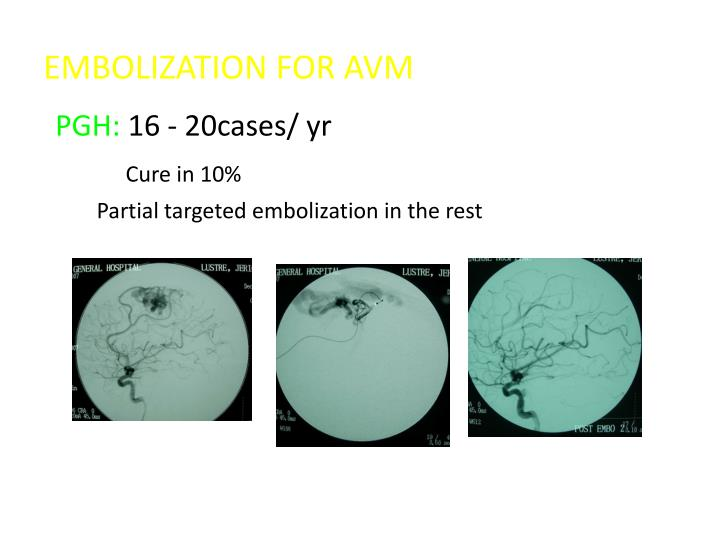 EMBOLIZATION FOR AVM