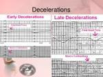 decelerations