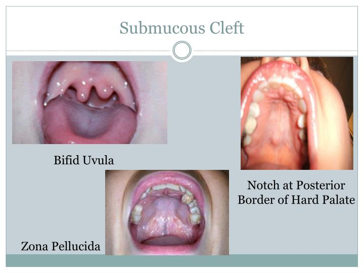 submucosal cleft palate Figure 1 cleft types: a) submucous cleft palate, b) cleft soft palate, c) complete cleft palate, d) cleft lip, e) unilateral cleft lip and palate and f) bilateral.
