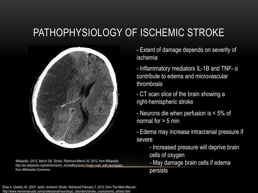 PPT - Ischemic Stroke PowerPoint Presentation - ID:1586317