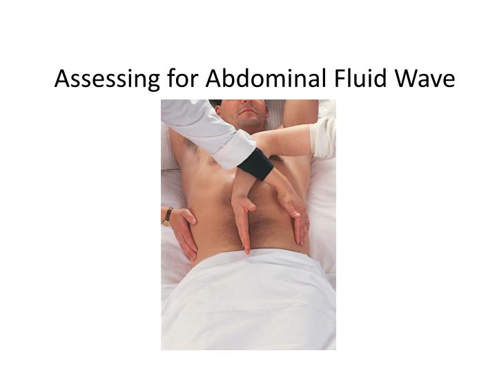Assessing for Abdominal Fluid Wave