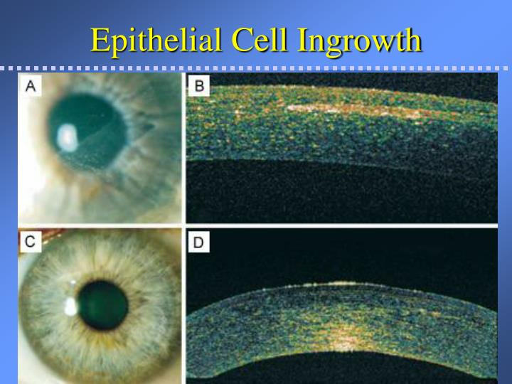 Epithelial Cell Ingrowth