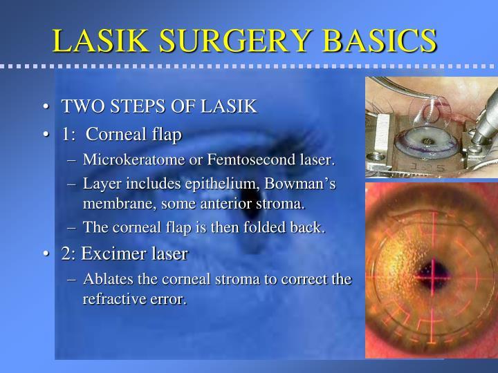 LASIK SURGERY BASICS