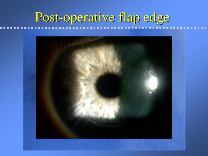 Post-operative flap