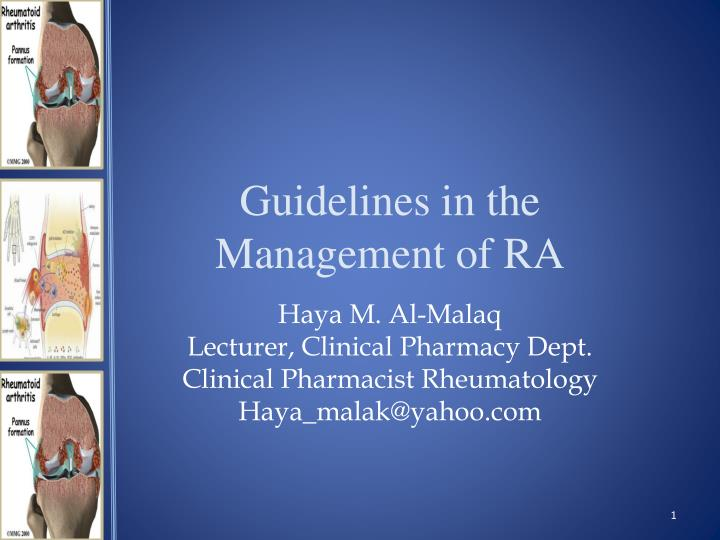 guidelines in the management of ra n.