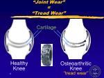 joint wear tread wear