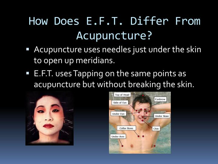 How Does E.F.T. Differ From Acupuncture?