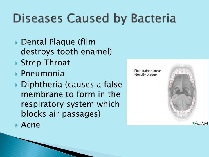 Diseases Caused by Bacteria