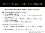 asdoh sturge weber case report12